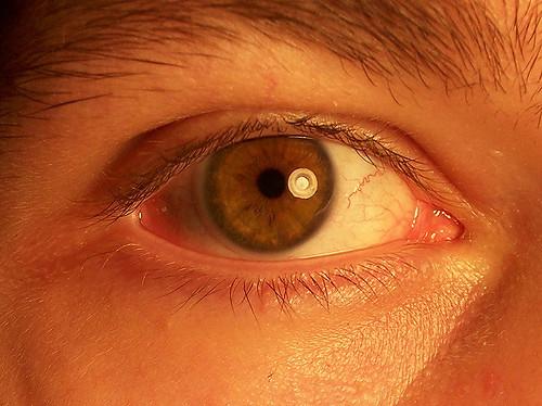 Lentille oeil