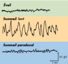 Le sommeil profond (ou lent) se caractérise par un électroencéphalogramme montrant des ondes de grande amplitude, ce qui signifie que localement, tous les neurones sont en phase.
